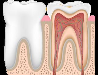 虫歯レベルC0
