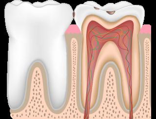 虫歯レベルC1