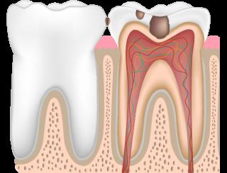 虫歯レベルC2