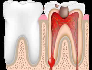 虫歯レベルC3