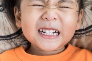 歯肉炎の予防