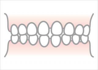 空隙歯列弓(すき歯)