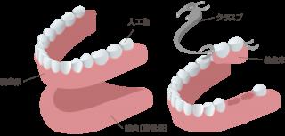 保険の義歯(入れ歯)