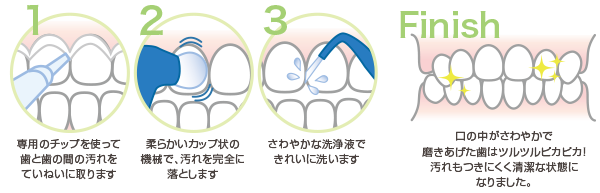 歯のクリーニング(P.M.T.C)