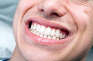 歯ぎしり・くいしばり予防